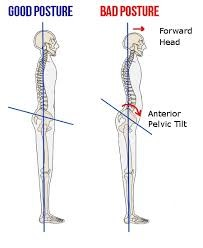 Two images of a skeleton shown from the side. The 1st is shown with good posture and the 2nd shows bad posture with anterior pelvic tilt.