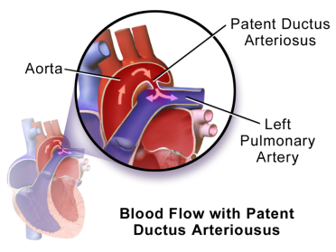 Blood Flow with Patent Ductus Arteriousus